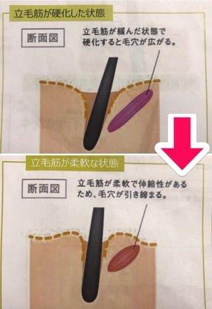 角質層を強化・立毛筋が柔軟になる説明